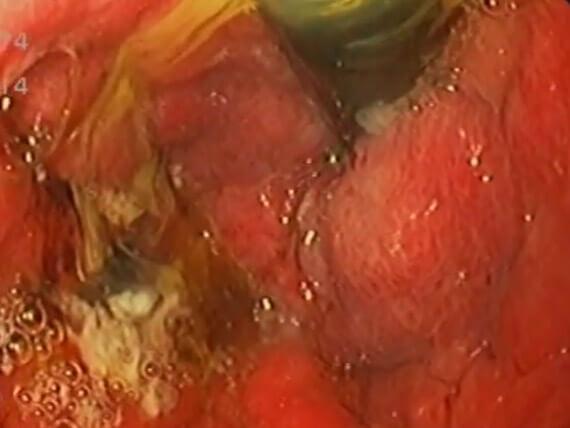 Vidéos endoscopie p2 Tunisie Sousse | Dr Sami Boudabbous